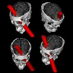 Phineas Gage2